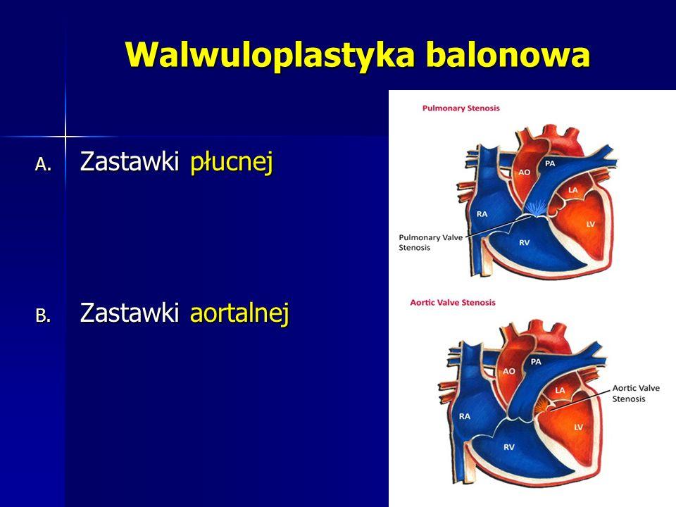 Walwuloplastyka balonowa A. Zastawki płucnej B. Zastawki aortalnej
