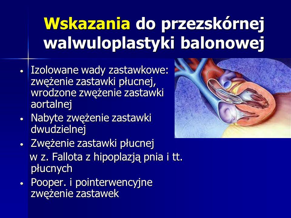 Wskazania do przezskórnej walwuloplastyki balonowej Izolowane wady zastawkowe: zwężenie zastawki płucnej, wrodzone zwężenie zastawki aortalnej Izolowa
