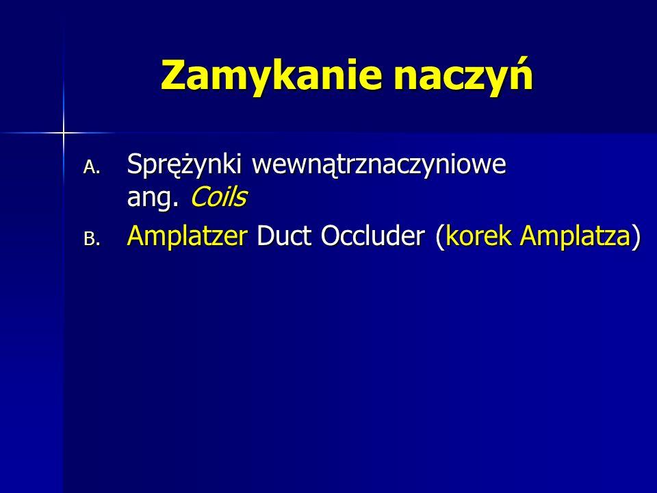 Zamykanie naczyń A. Sprężynki wewnątrznaczyniowe ang. Coils B. Amplatzer Duct Occluder (korek Amplatza)