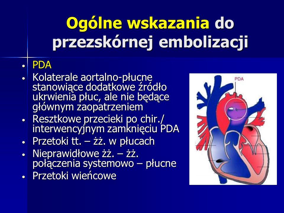 Ogólne wskazania do przezskórnej embolizacji PDA PDA Kolaterale aortalno-płucne stanowiące dodatkowe źródło ukrwienia płuc, ale nie będące głównym zao