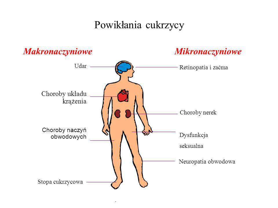 MakronaczynioweMikronaczyniowe Udar Choroby układu krążenia Stopa cukrzycowa Retinopatia i zaćma Choroby nerek Neuropatia obwodowa Choroby naczyń obwo