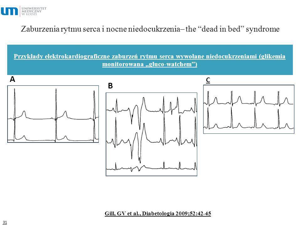 Zaburzenia rytmu serca i nocne niedocukrzenia– the dead in bed syndrome 31 Gill, GV et al., Diabetologia 2009;52:42-45 Przykłady elektrokardiograficzn