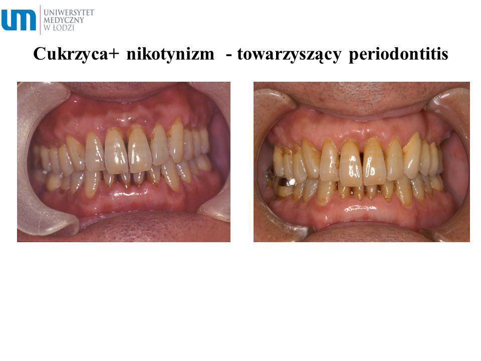 Cukrzyca+ nikotynizm - towarzyszący periodontitis Smoking at 30 cigarettes/day for 33 years After 10 years, smoking Cessation for 6 months
