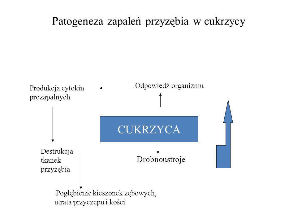 Patogeneza zapaleń przyzębia w cukrzycy CUKRZYCA Drobnoustroje Odpowiedź organizmu Produkcja cytokin prozapalnych Destrukcja tkanek przyzębia Pogłębie