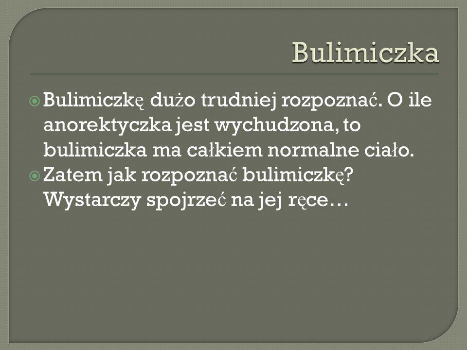 Bulimiczk ę du ż o trudniej rozpozna ć. O ile anorektyczka jest wychudzona, to bulimiczka ma ca ł kiem normalne cia ł o. Zatem jak rozpozna ć bulimicz