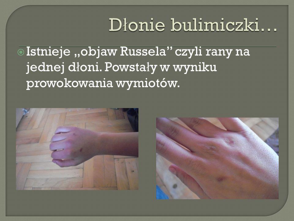 Istnieje objaw Russela czyli rany na jednej d ł oni. Powsta ł y w wyniku prowokowania wymiotów.