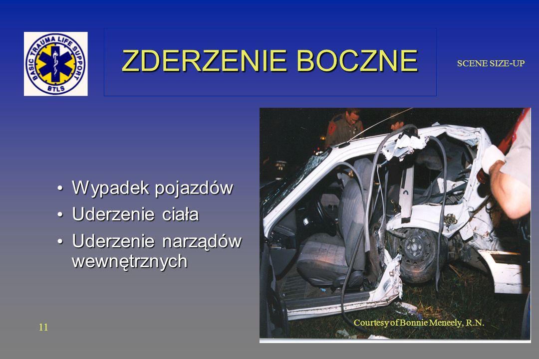 SCENE SIZE-UP ZDERZENIE BOCZNE Wypadek pojazdów Wypadek pojazdów Uderzenie ciała Uderzenie ciała Uderzenie narządów wewnętrznych Uderzenie narządów wewnętrznych 11 Courtesy of Bonnie Meneely, R.N.