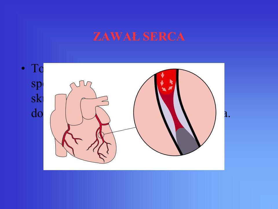 ZAWAŁ SERCA To martwica mięśnia sercowego spowodowana jego niedokrwieniem na skutek zamknięcia tętnicy wieńcowej doprowadzającej krew do obszaru serca