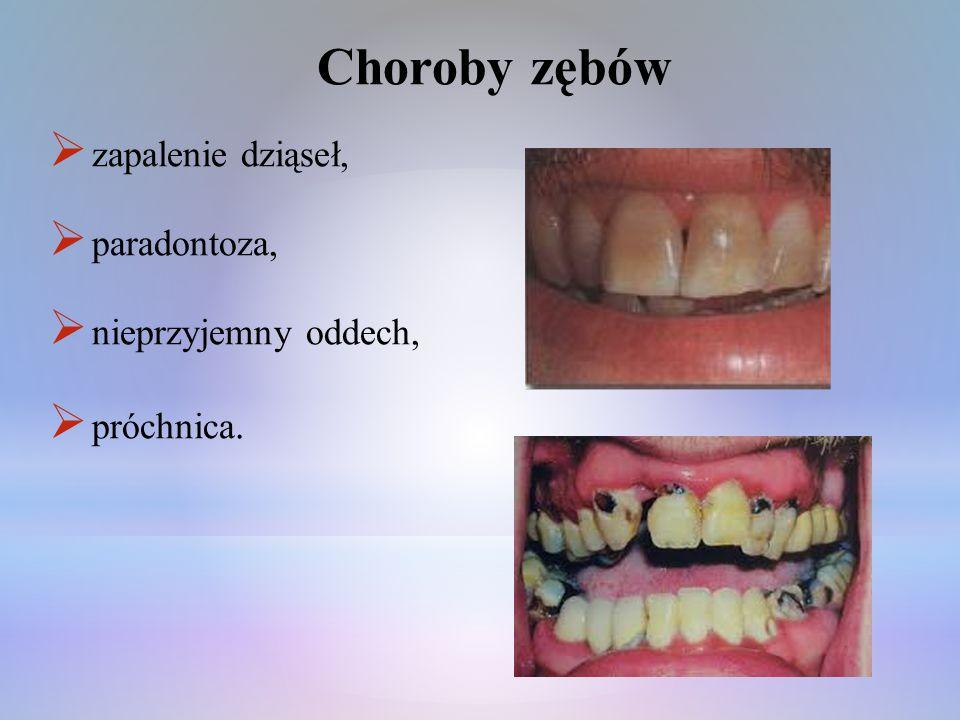 Choroby zębów zapalenie dziąseł, paradontoza, nieprzyjemny oddech, próchnica.