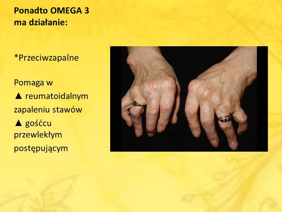 Ponadto OMEGA 3 ma działanie: *Przeciwzapalne Pomaga w reumatoidalnym zapaleniu stawów gośćcu przewlekłym postępującym