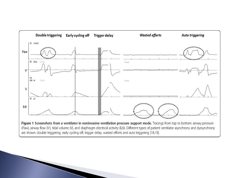 Stella i England badali wpływ ciśnienia i przepływu na izolowanych górnych drogach oddechowych świń: o Ujemne ciśnienie w g.d.o.