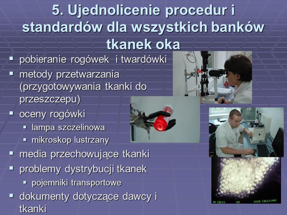 5. Ujednolicenie procedur i standardów dla wszystkich banków tkanek oka pobieranie rogówek i twardówki pobieranie rogówek i twardówki metody przetwarz