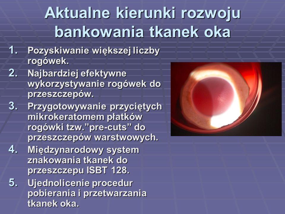 Aktualne kierunki rozwoju bankowania tkanek oka 1.