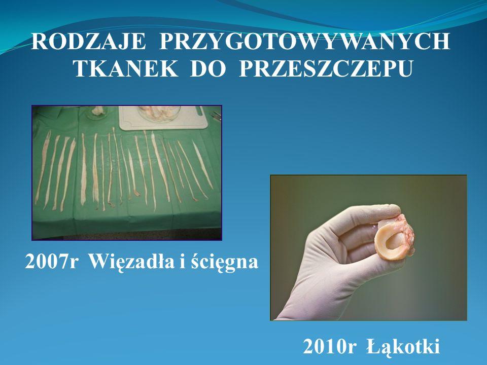 2007r Więzadła i ścięgna 2010r Łąkotki RODZAJE PRZYGOTOWYWANYCH TKANEK DO PRZESZCZEPU