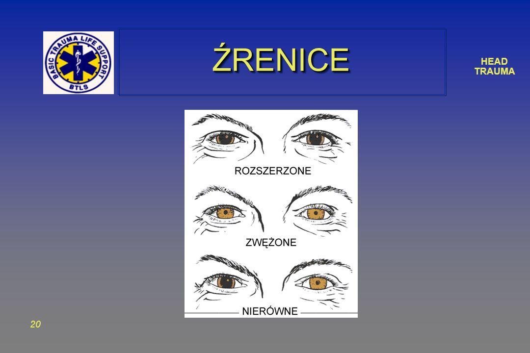 HEAD TRAUMA 20 ŹRENICEŹRENICE