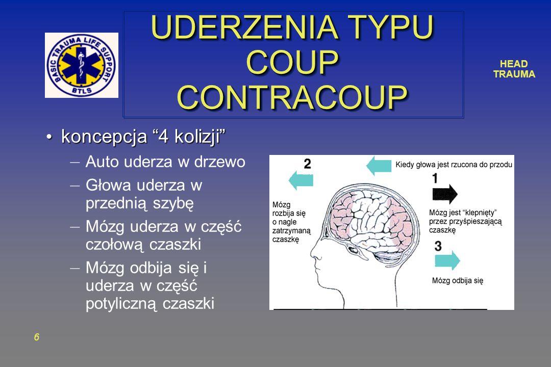 HEAD TRAUMA 6 UDERZENIA TYPU COUP CONTRACOUP koncepcja 4 kolizji koncepcja 4 kolizji – Auto uderza w drzewo – Głowa uderza w przednią szybę – Mózg uderza w część czołową czaszki – Mózg odbija się i uderza w część potyliczną czaszki