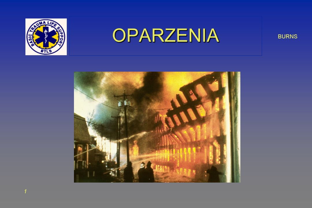 BURNS 1 OPARZENIAOPARZENIA
