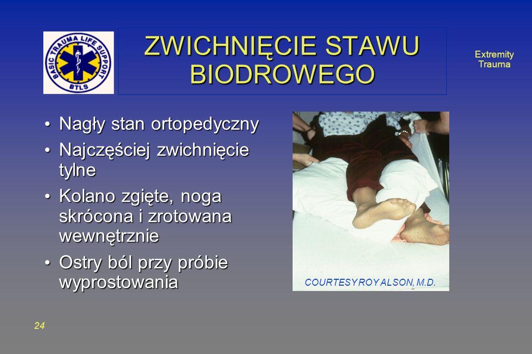 Extremity Trauma 24 ZWICHNIĘCIE STAWU BIODROWEGO Nagły stan ortopedyczny Nagły stan ortopedyczny Najczęściej zwichnięcie tylne Najczęściej zwichnięcie tylne Kolano zgięte, noga skrócona i zrotowana wewnętrznie Kolano zgięte, noga skrócona i zrotowana wewnętrznie Ostry ból przy próbie wyprostowania Ostry ból przy próbie wyprostowania COURTESY ROY ALSON, M.D.