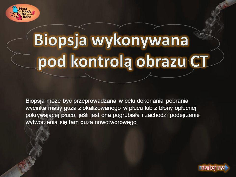 Biopsja może być przeprowadzana w celu dokonania pobrania wycinka masy guza zlokalizowanego w płucu lub z błony opłucnej pokrywającej płuco, jeśli jes