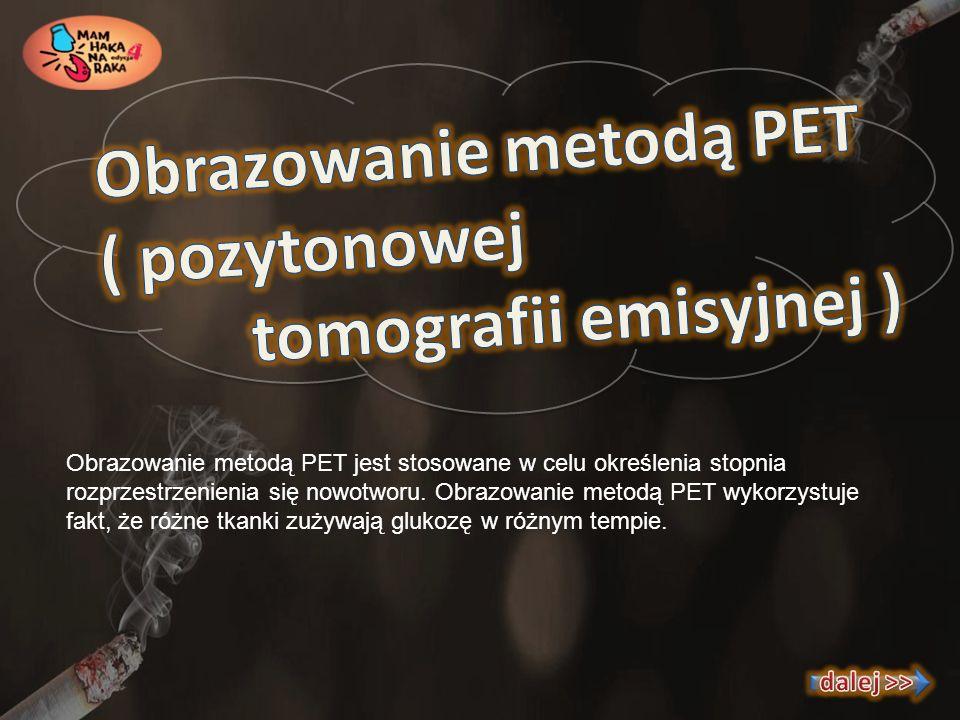 Obrazowanie metodą PET jest stosowane w celu określenia stopnia rozprzestrzenienia się nowotworu. Obrazowanie metodą PET wykorzystuje fakt, że różne t
