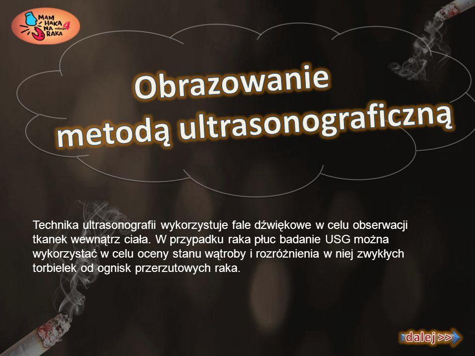 Technika ultrasonografii wykorzystuje fale dźwiękowe w celu obserwacji tkanek wewnątrz ciała. W przypadku raka płuc badanie USG można wykorzystać w ce