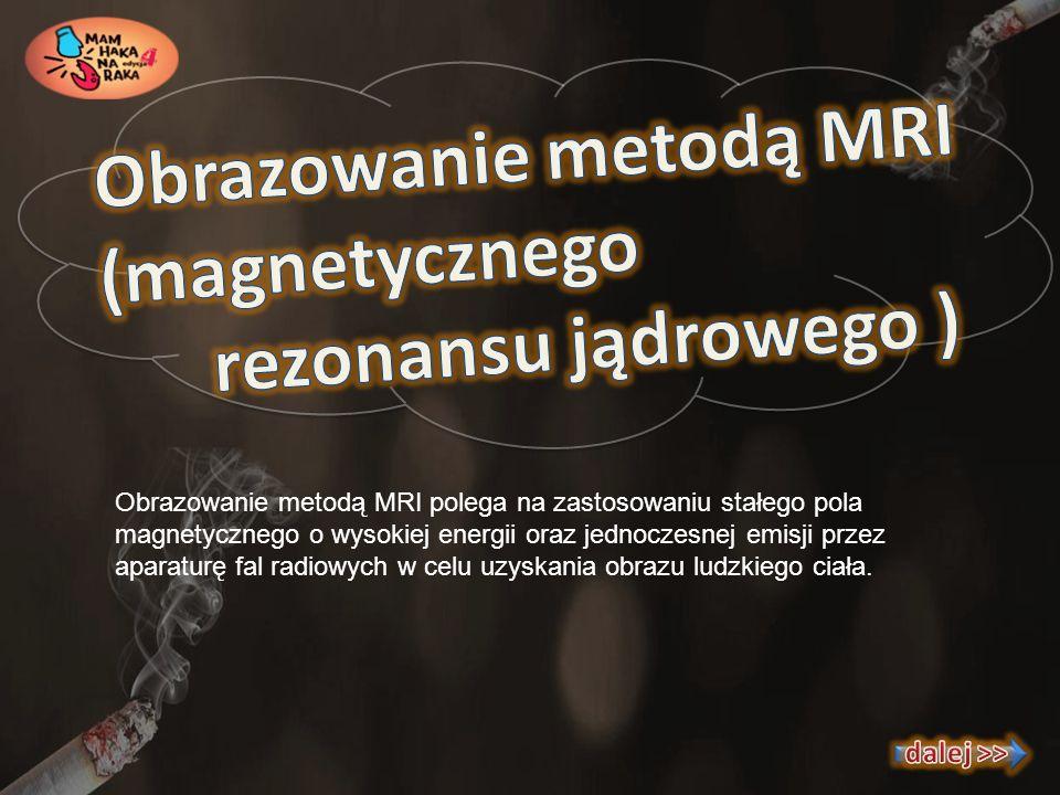 Obrazowanie metodą MRI polega na zastosowaniu stałego pola magnetycznego o wysokiej energii oraz jednoczesnej emisji przez aparaturę fal radiowych w c