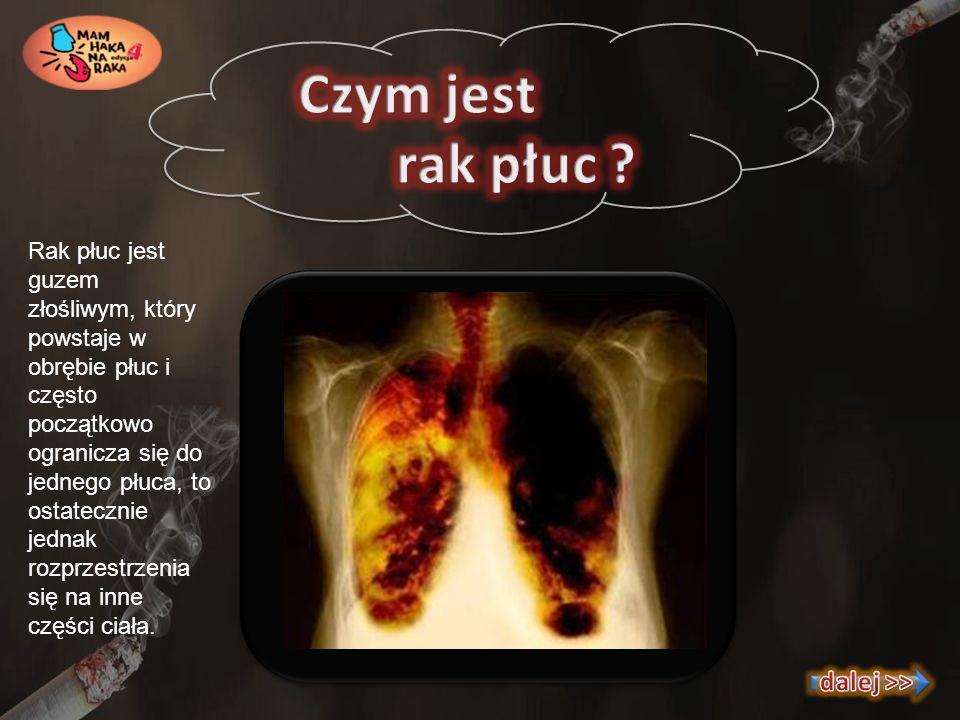 Rak płuc jest guzem złośliwym, który powstaje w obrębie płuc i często początkowo ogranicza się do jednego płuca, to ostatecznie jednak rozprzestrzenia