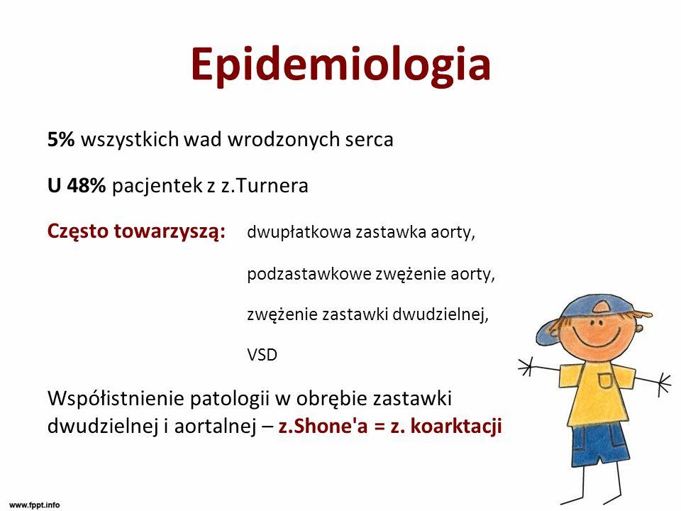 Epidemiologia 5% wszystkich wad wrodzonych serca U 48% pacjentek z z.Turnera Często towarzyszą: dwupłatkowa zastawka aorty, podzastawkowe zwężenie aor