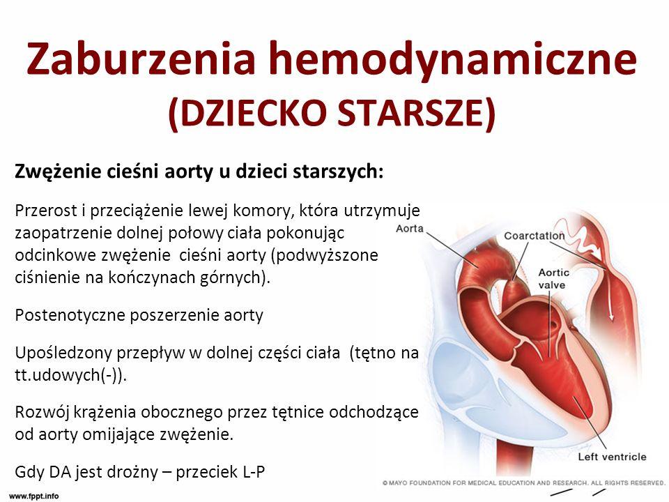 Zaburzenia hemodynamiczne (DZIECKO STARSZE) Zwężenie cieśni aorty u dzieci starszych: Przerost i przeciążenie lewej komory, która utrzymuje zaopatrzen