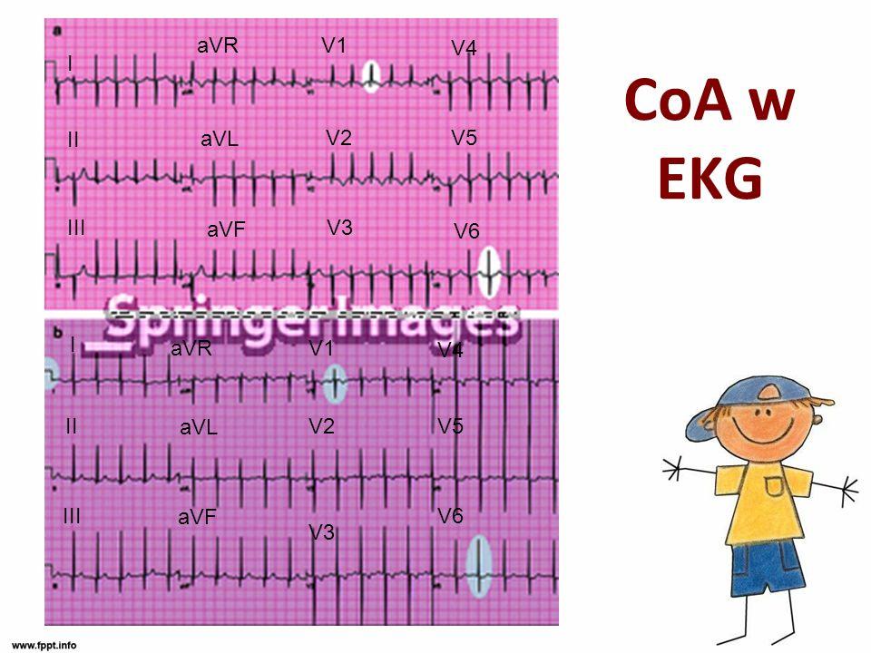 CoA w EKG I II III aVR aVL aVF V1 V2 V3 V4 V5 V6 I II III aVR aVL aVF V1 V2 V3 V4 V5 V6