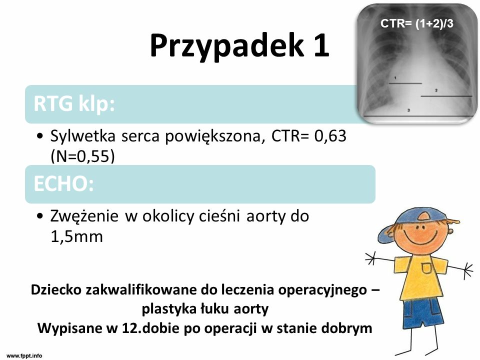 Przypadek 1 RTG klp: Sylwetka serca powiększona, CTR= 0,63 (N=0,55) ECHO: Zwężenie w okolicy cieśni aorty do 1,5mm Dziecko zakwalifikowane do leczenia