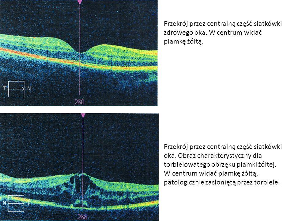 Przekrój przez centralną część siatkówki zdrowego oka. W centrum widać plamkę żółtą. Przekrój przez centralną część siatkówki oka. Obraz charakterysty
