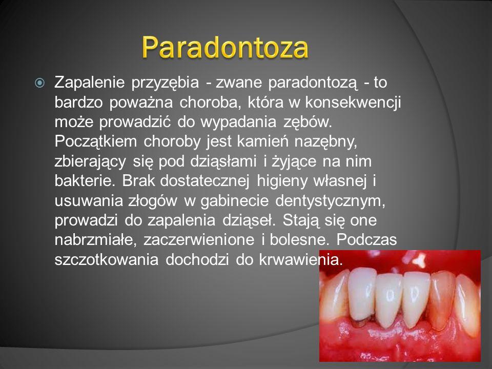 Zapalenie przyzębia - zwane paradontozą - to bardzo poważna choroba, która w konsekwencji może prowadzić do wypadania zębów.