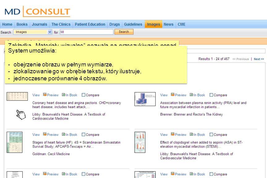 Zakładka Materiały wizualne pozwala na przeszukiwanie ponad 50 000 wysokiej jakości zdjęć, grafów oraz tabeli zamieszczonych w książkach na platformie MD Consult.