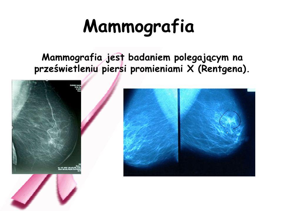Mammografia jest badaniem polegającym na prześwietleniu piersi promieniami X (Rentgena). Mammografia