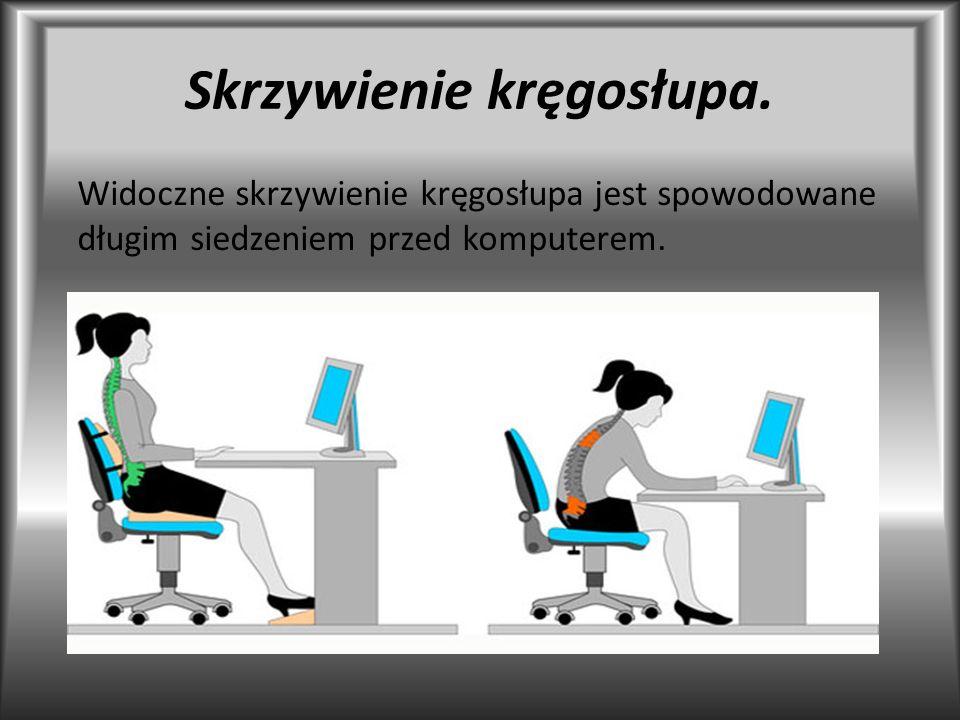 Skrzywienie kręgosłupa. Widoczne skrzywienie kręgosłupa jest spowodowane długim siedzeniem przed komputerem.
