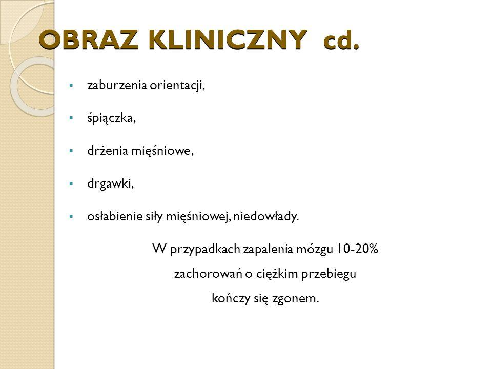 OBRAZ KLINICZNY cd.