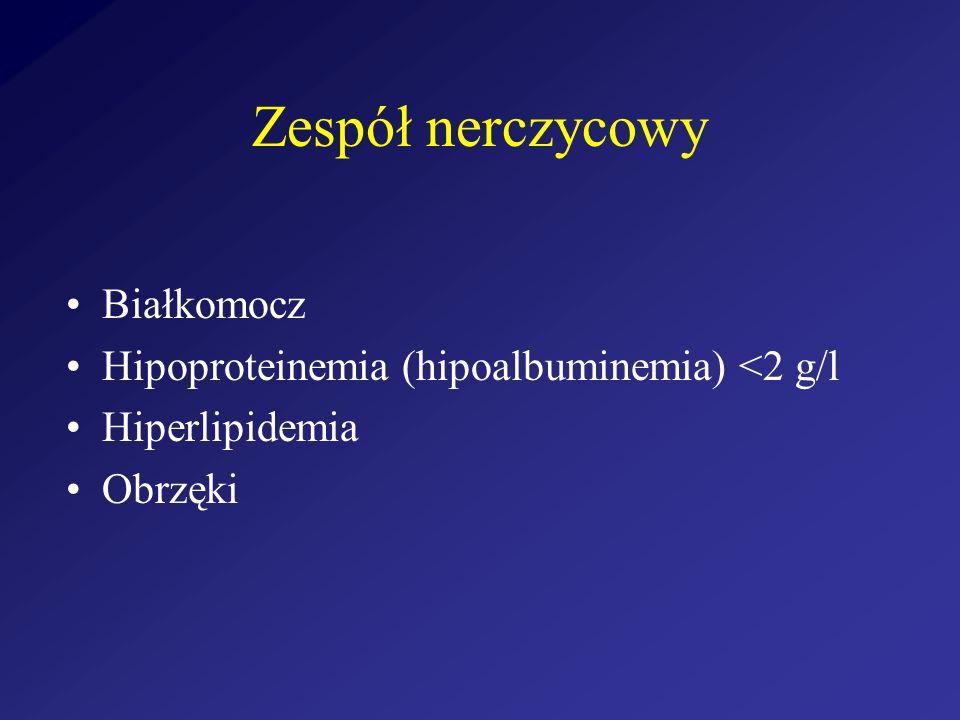 Zespół nerczycowy Białkomocz Hipoproteinemia (hipoalbuminemia) <2 g/l Hiperlipidemia Obrzęki