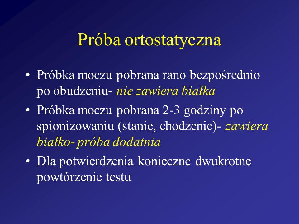 Próba ortostatyczna Próbka moczu pobrana rano bezpośrednio po obudzeniu- nie zawiera białka Próbka moczu pobrana 2-3 godziny po spionizowaniu (stanie,