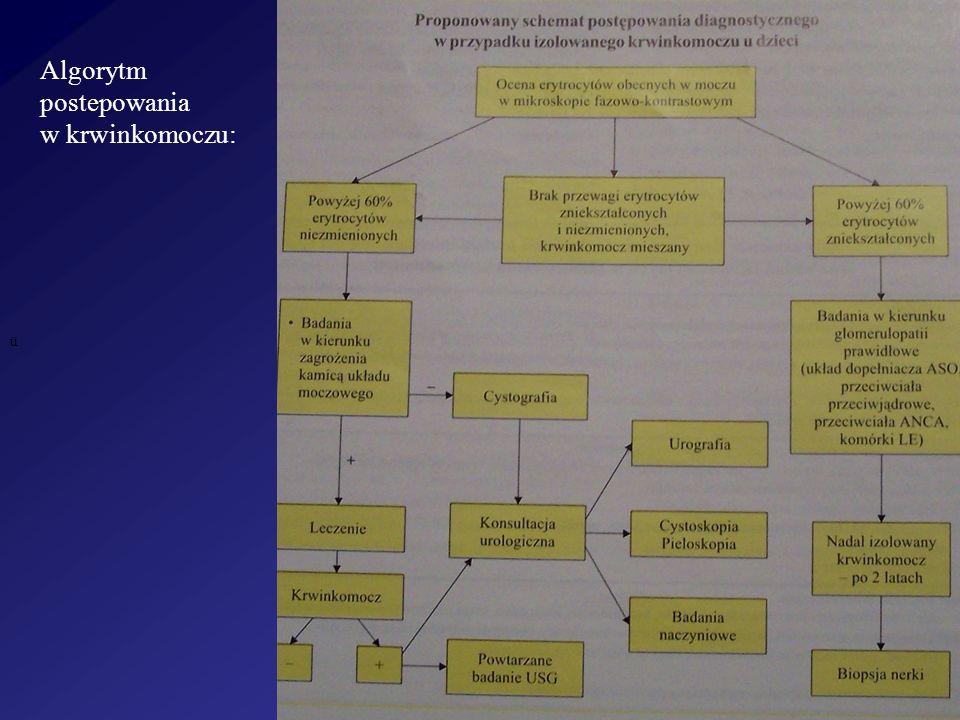ü Algorytm postepowania w krwinkomoczu:
