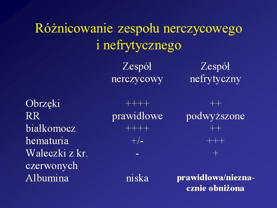Objawy sugerujące k z n bezobjawowy krwinkomocz nawracający krwiomocz bezobjawowy białkomocz zespół nerczycowy zespół nefrytyczny
