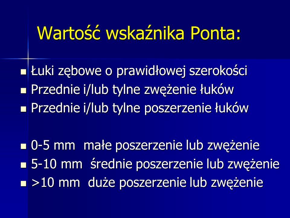Wartość wskaźnika Ponta: Łuki zębowe o prawidłowej szerokości Łuki zębowe o prawidłowej szerokości Przednie i/lub tylne zwężenie łuków Przednie i/lub