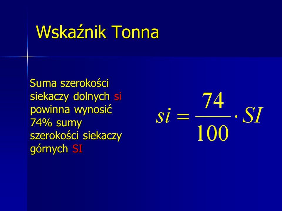 Wskaźnik Tonna Suma szerokości siekaczy dolnych si powinna wynosić 74% sumy szerokości siekaczy górnych SI Suma szerokości siekaczy dolnych si powinna