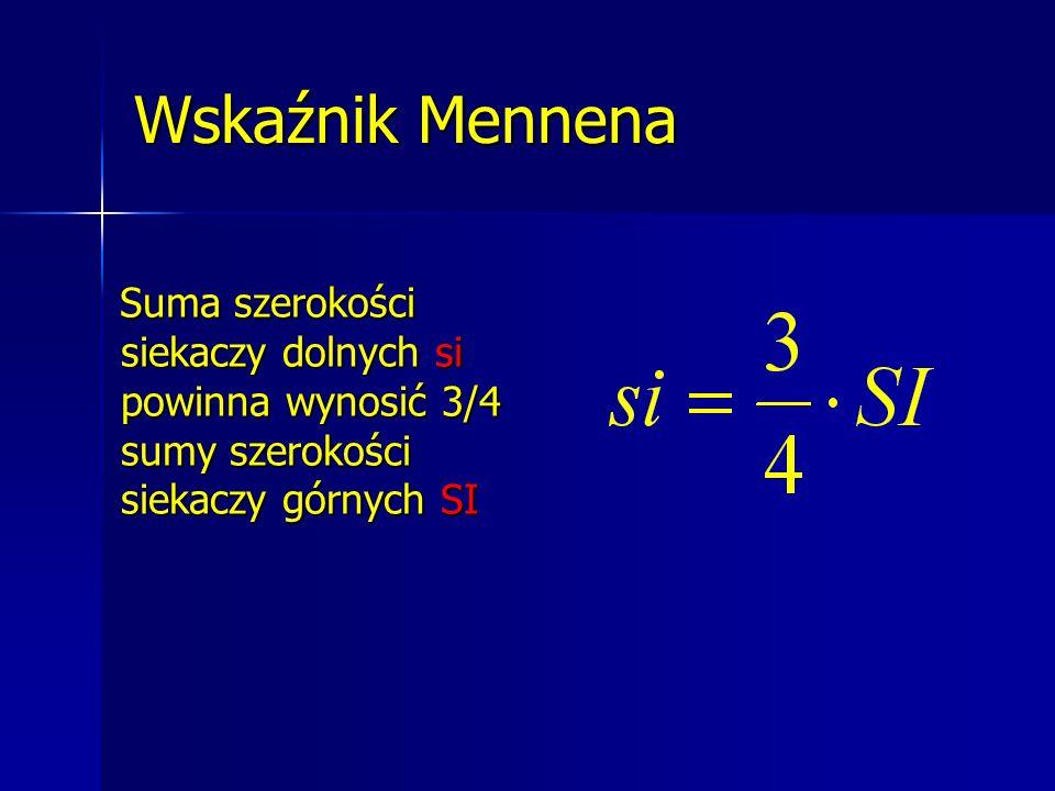Wskaźnik Mennena Suma szerokości siekaczy dolnych si powinna wynosić 3/4 sumy szerokości siekaczy górnych SI Suma szerokości siekaczy dolnych si powin
