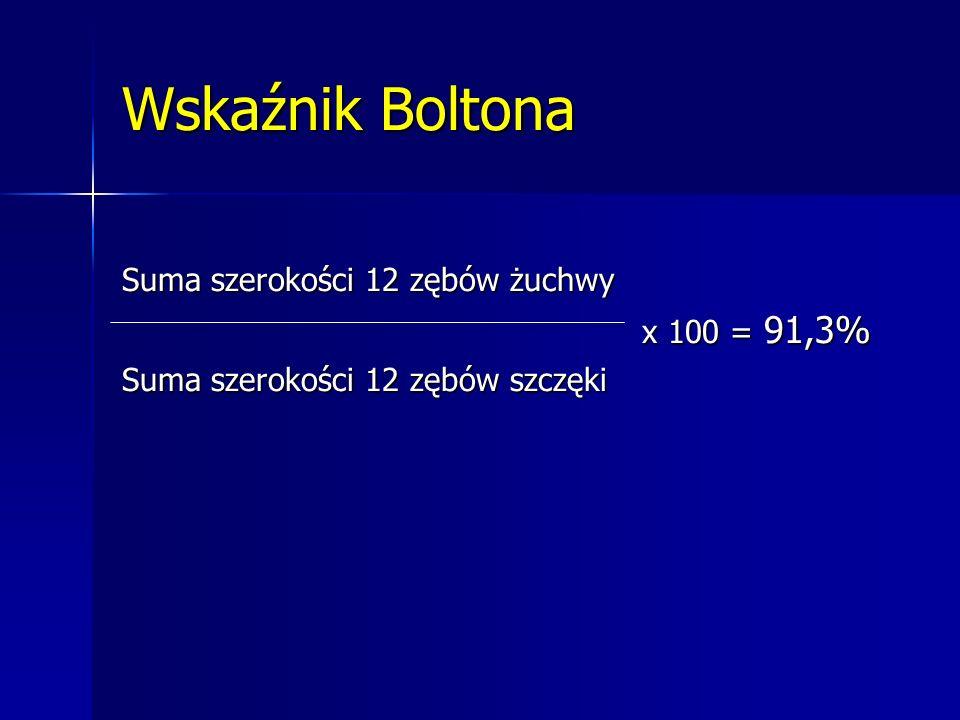 Wskaźnik Boltona Suma szerokości 12 zębów żuchwy x 100 = 91,3% x 100 = 91,3% Suma szerokości 12 zębów szczęki