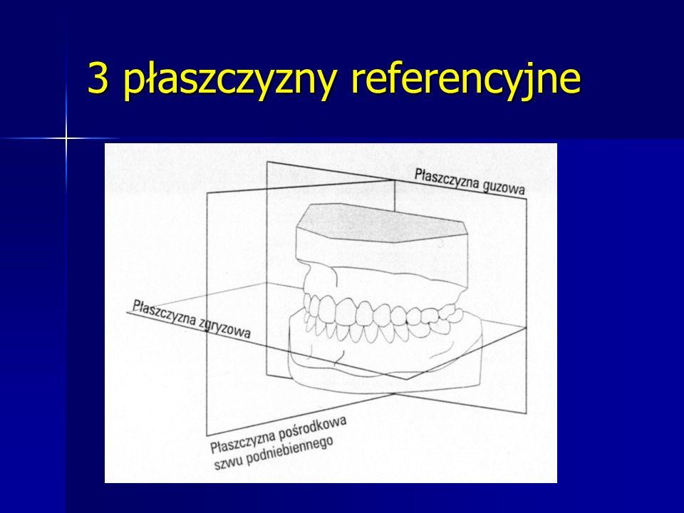 Wartość wskaźnika Ponta: Łuki zębowe o prawidłowej szerokości Łuki zębowe o prawidłowej szerokości Przednie i/lub tylne zwężenie łuków Przednie i/lub tylne zwężenie łuków Przednie i/lub tylne poszerzenie łuków Przednie i/lub tylne poszerzenie łuków 0-5 mm małe poszerzenie lub zwężenie 0-5 mm małe poszerzenie lub zwężenie 5-10 mm średnie poszerzenie lub zwężenie 5-10 mm średnie poszerzenie lub zwężenie >10 mm duże poszerzenie lub zwężenie >10 mm duże poszerzenie lub zwężenie