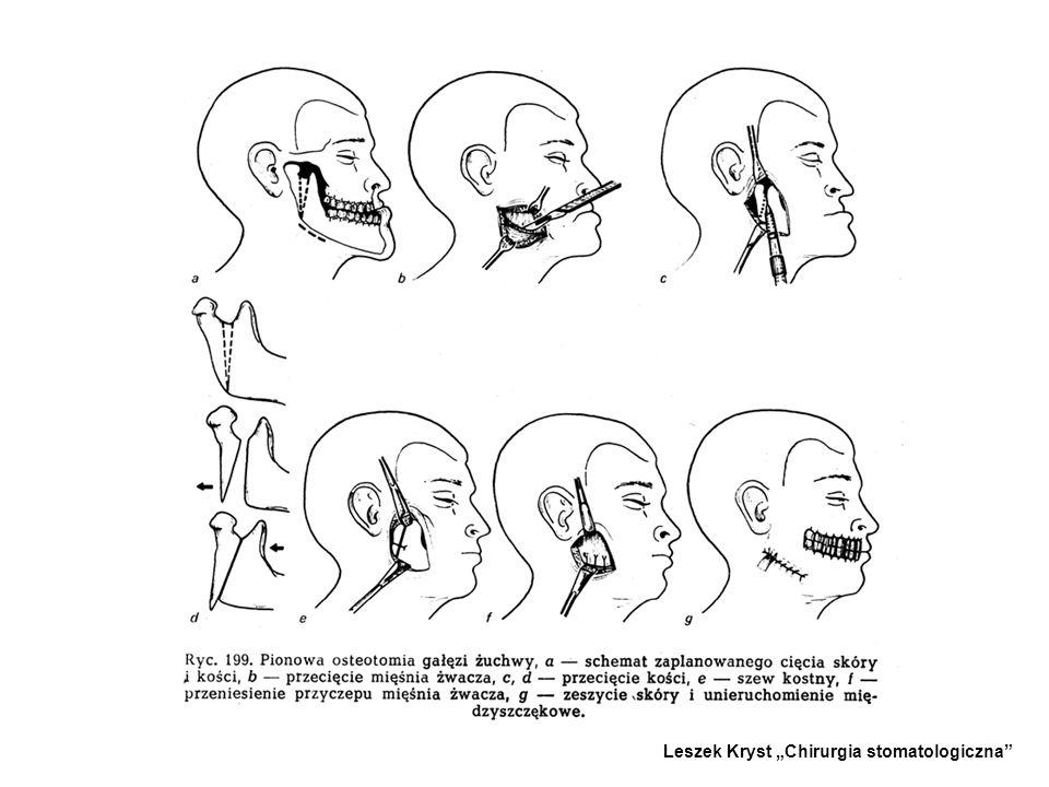 2.SKOŚNA OSTETOMIA GAŁĘZI ŻUCHWY Z DOJŚCIA ZEWNĄTRZUSTNEGO - -Stosowana do cofania i wysuwania żuchwy. - -Zabieg ten polega na przecięciu skośnym lub