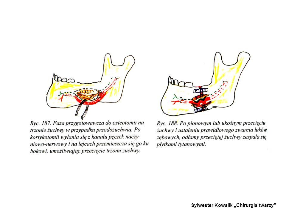 3. - 3.METODA DINGMANA - -Wykonywana na trzonie żuchwy. - -Metoda polega na odsłonięciu bezzębnego odcinka żuchwy, ewentualnie usunięciu zęba w miejsc