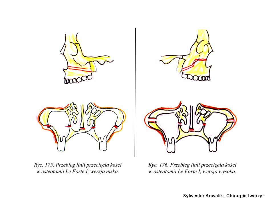 1.OSTEOTOMIA SZCZĘKI LE FORTE I Z DOJŚCIA WEWNĄTRZUSTNEGO - -Stosowana w różnych zniekształceniach szczękowo-zgryzowych, szczególnie porozszczepowych i pourazowych.