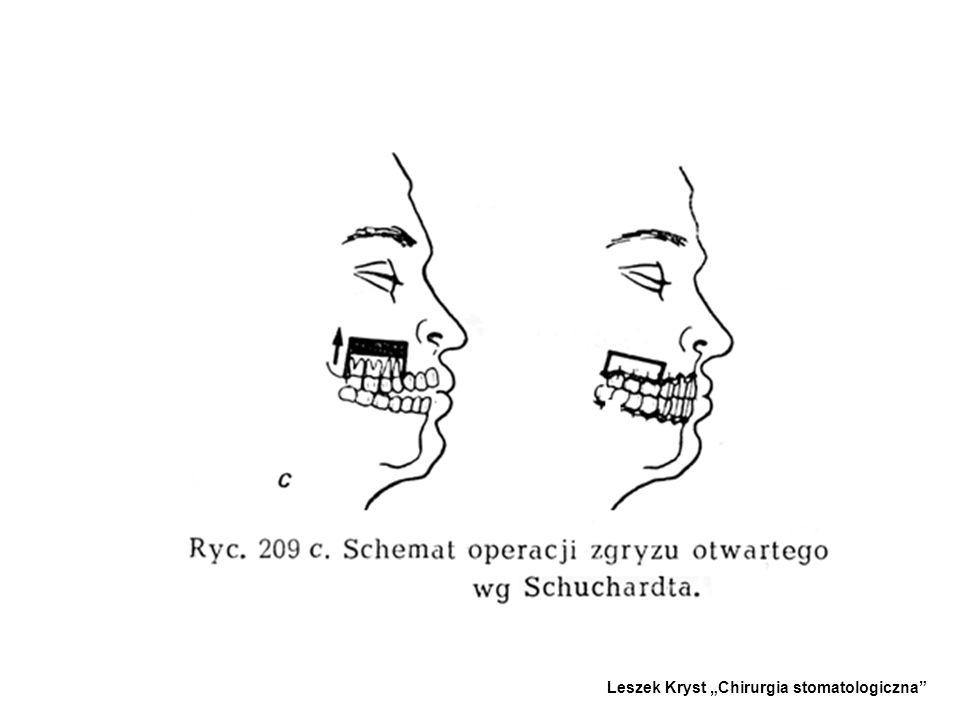 2.OSTEOTOMIA TYLNYCH ODCINKÓW SZCZĘKI WEDŁUG SCHUCHARDTA - -Stosowana w przypadku zgryzu otwartego częściowego, wybitnie zaznaczonego w przednim odcin